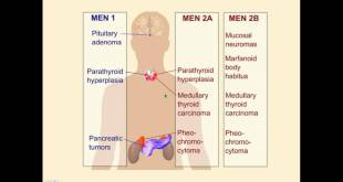 Endocrinology Review Questions