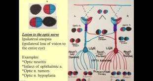 Neuro-Opthalmology