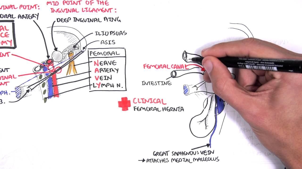 Modern Female Inguinal Hernia Anatomy Embellishment - Anatomy and ...
