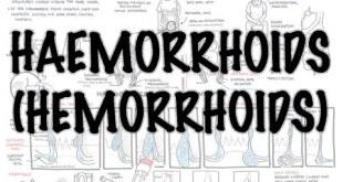 Haemorrhoids (Hemorrhoids) - Overview