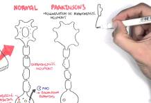 Pharmacology - Parkinson's Disease