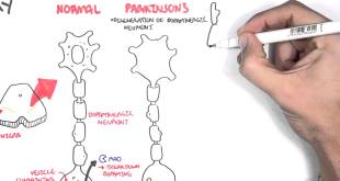 Pharmacology - Parkinson's Disease
