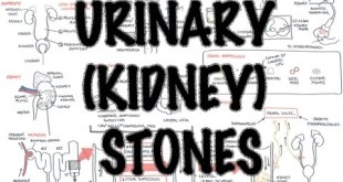 Urinary/Kidney Stones DETAILED - Overview