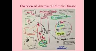 Anemia of Chronic Disease - Medical Review Series