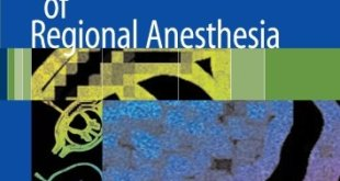 Complications of Regional Anesthesia 2nd Edition PDF