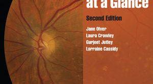 Ophthalmology at a Glance 2nd Edition PDF