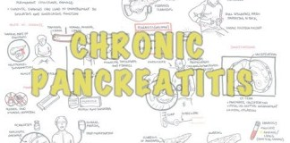 Chronic Pancreatitis Overview