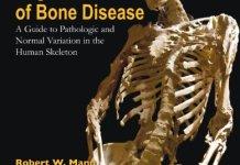 Photographic Regional Atlas of Bone Disease PDF