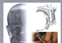 Oculoplastic Surgery The Essentials PDF