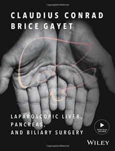 Laparoscopic Liver Pancreas and Biliary Surgery PDF
