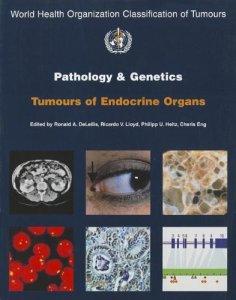 Pathology and Genetics of Tumours of Endocrine Organs PDF