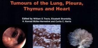 Pathology and Genetics of Tumours of the Lung Pleura Thymus and Heart PDF