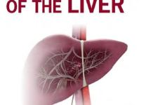Transplantation of the Liver 3rd Edition PDF