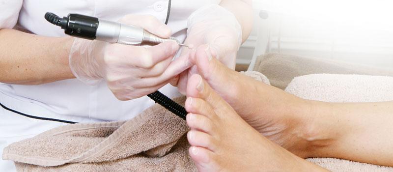 Ārstnieciskā pēdu aprūpe