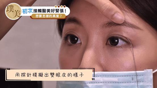 雙眼皮手術陳心瑜醫師探針模擬眼皮