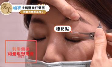 雙眼皮諮詢過程陳心瑜醫師術前測量