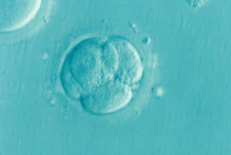 Infertility in Women and Men