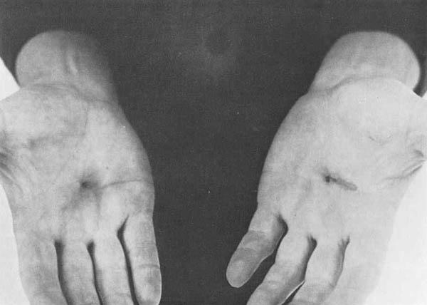 Mãos de Chris Burden após a performance