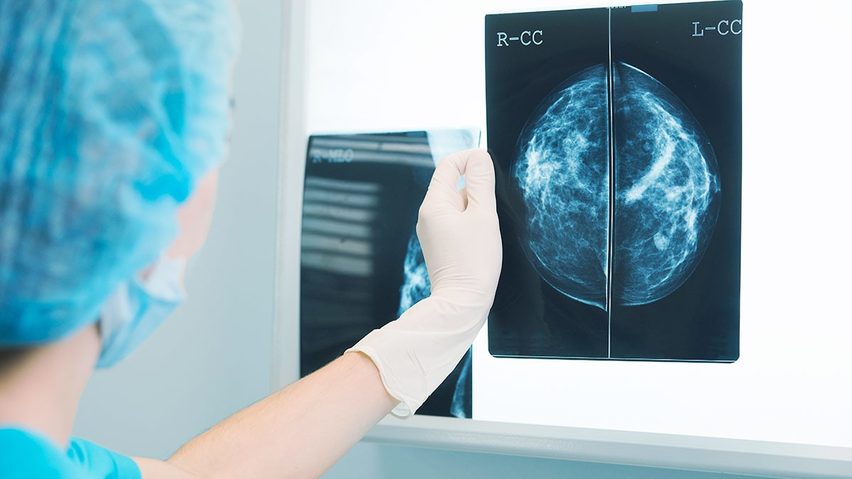 What Kind Of Breast Cancer Screening To Get Consumer