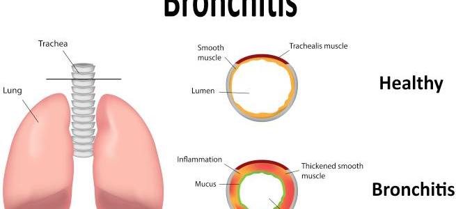 Bronchitis - Symptoms, causes and treatment