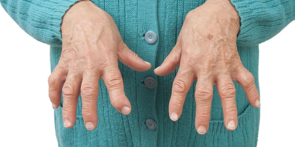 Arthritis - Symptoms, causes and treatment