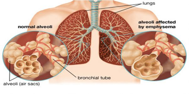 Emphysema - symptoms, causes and treatment