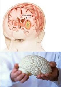 penyakit tumor otak