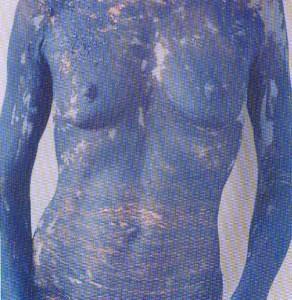 Corps-bleu