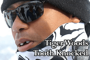 Tiger Woods Gets Tooth Knocked Out