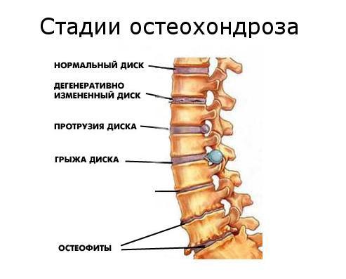 chondroksidas ir hipertenzija)