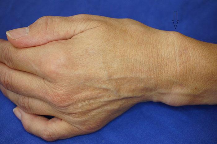 Тендовагинит предплечья симптомы разновидности диагностика и методы лечения