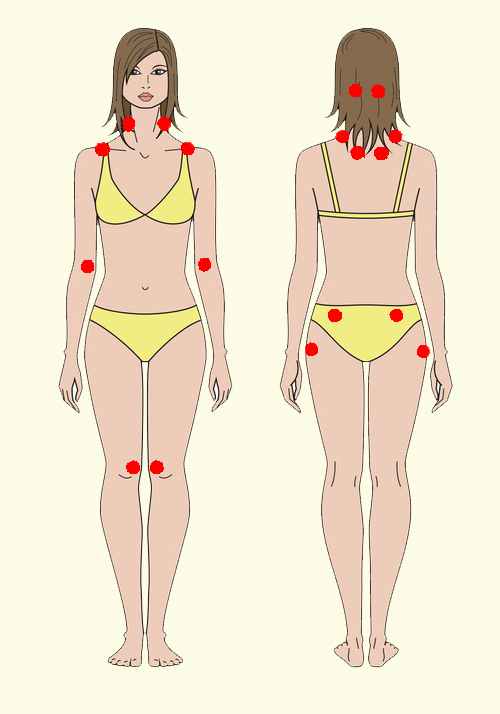 drauzio-silhueta-mulher-homem-fibromialgia-pushinka11-pontos-fibromialgia
