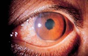 Болезнь Бехчета поражение слизистой глаза