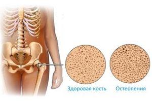 Остеопения: причины патологии, признаки, диагностика и лечение. Остеопения и остеопороз поясничного отдела позвоночника
