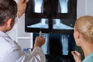 Остеохондропатия бугристости большеберцовой и пяточной кости у детей классификация