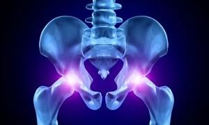 Боль в седалищной кости при сидении