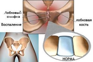 Лечебные меры по устранению боли в области лобка