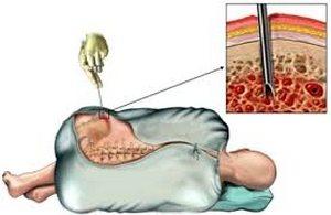 💊 Fiatalkori idiopátiás artritisz kezelés és Jia tünetek -