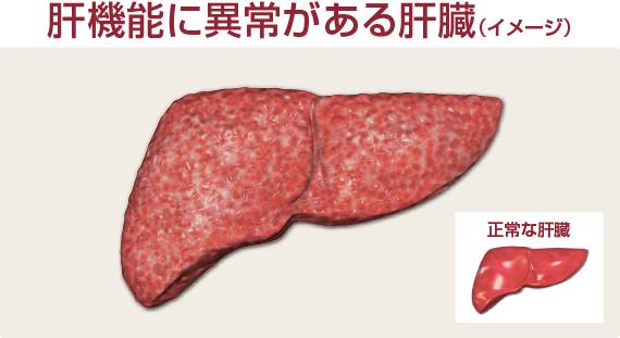 肝臓のイメージ