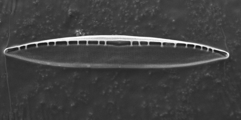 Et elektronmikroskopi bilde av innsiden av lokket til den ubeskrevne algen. Alle de små hullene som kan sees er viktige i å kunne ta opp og skille ut forskjellige gasser.