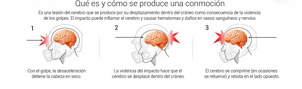 Resultado de imagen para conmoción cerebral