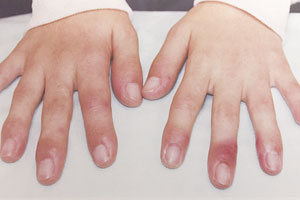 一 だけ が 腫れる 指 本