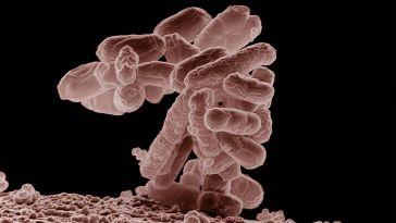 E coli at 10000x