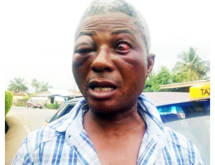 Man assaulted by Nsawam police