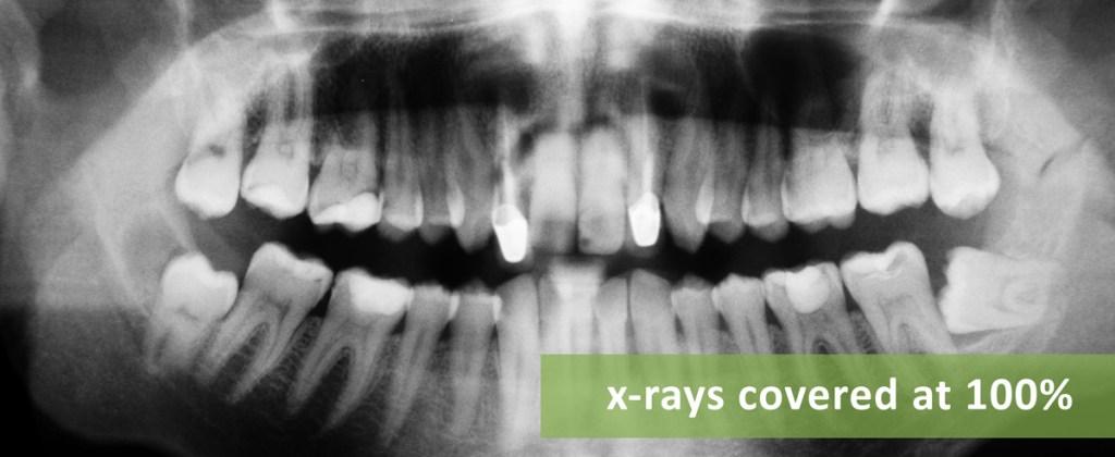 Asheville Dental Blog - Dental X-rays
