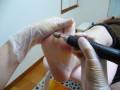 踵のガサガサは血流や姿勢にも影響する