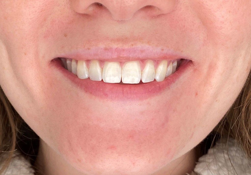 Smile Brilliant Before teeth whitening photo