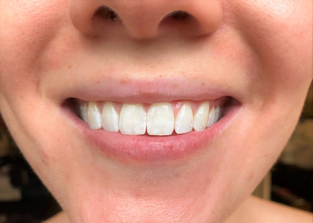 Smile Brilliant teeth whitening after photo