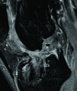 Figure 3: T2-weighted MRI of a left knee of a patients four years following ACL revision with soft tissue allograft and a bony reaction with consecutive tibial bone tunnel widening due to a fixation device. The graft in the bone tunnel is not homogenous and surrounded by irregular fibrous tissue. At the proximal part of the bone tunnel an evident synovial influx is visible.