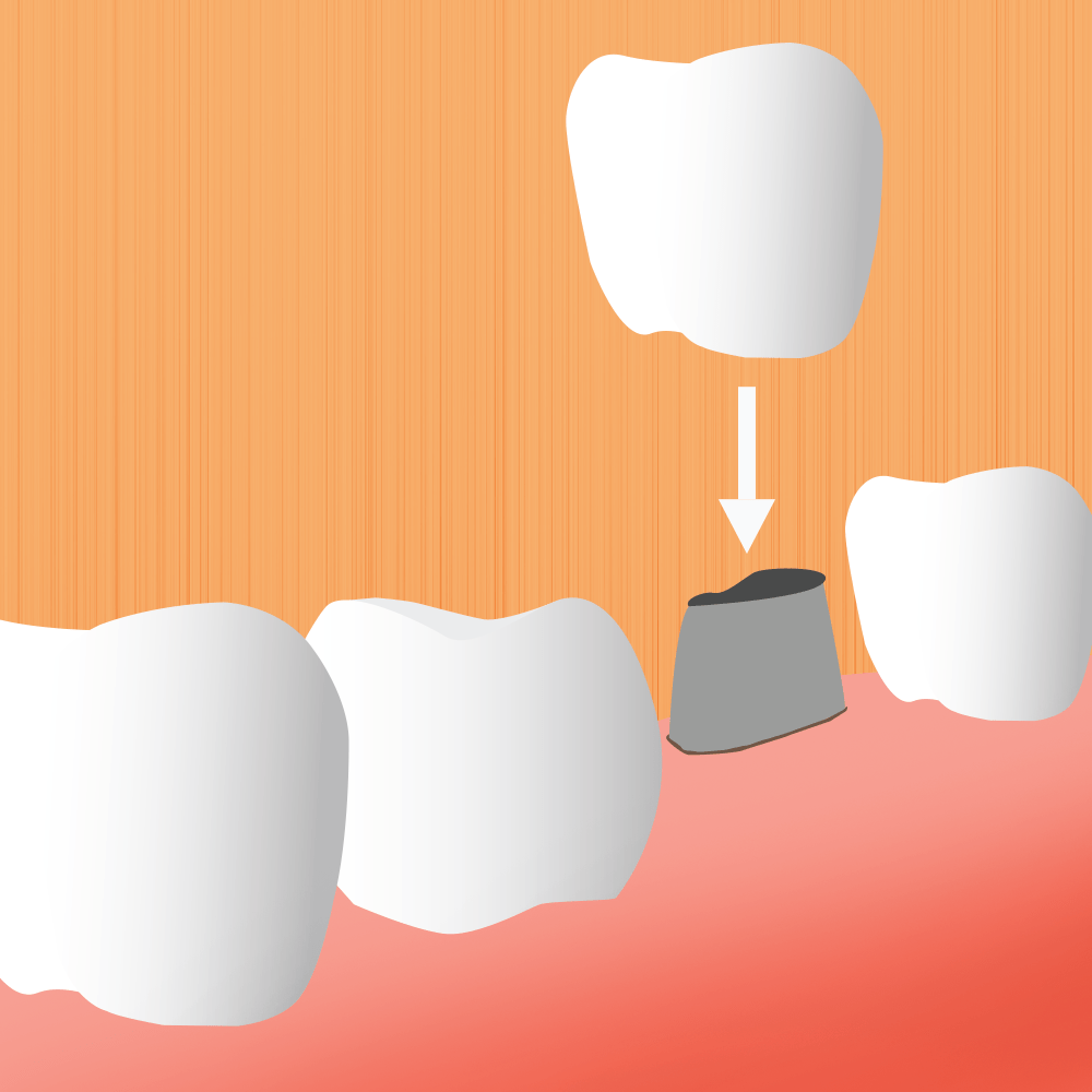Image For Dental Implants Page